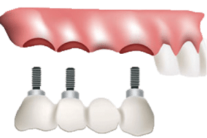 Implant-Supported-Bridge
