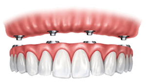 Screw Retained Dentures